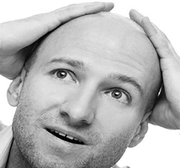Going bald sucks